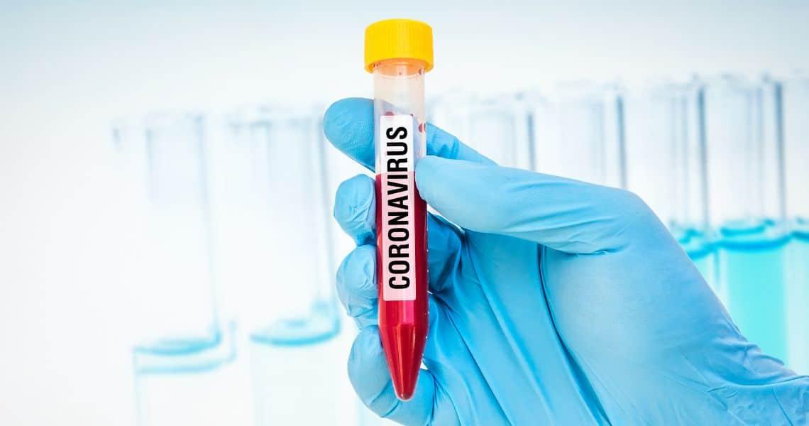 Coronavirus, un positivo al Covid-19 alle conferenze Ethereum